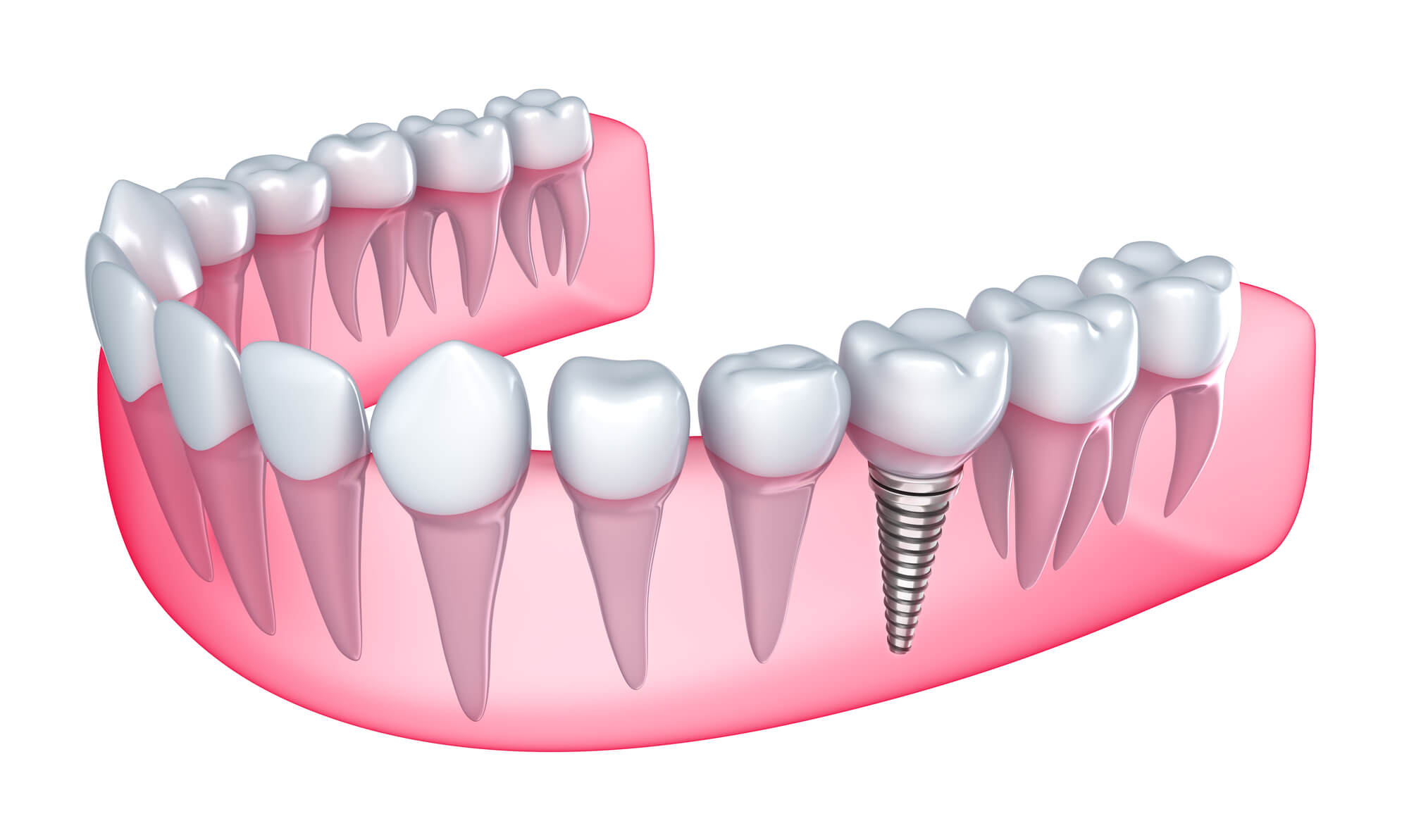 Where to Get Dental Implants Boynton Beach?