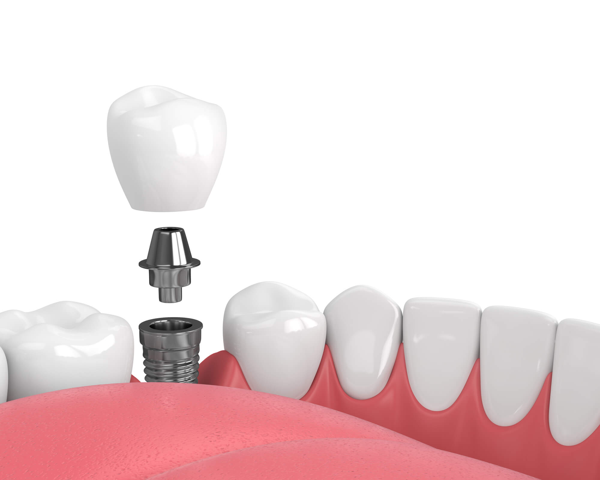 What are dental implants boynton beach?