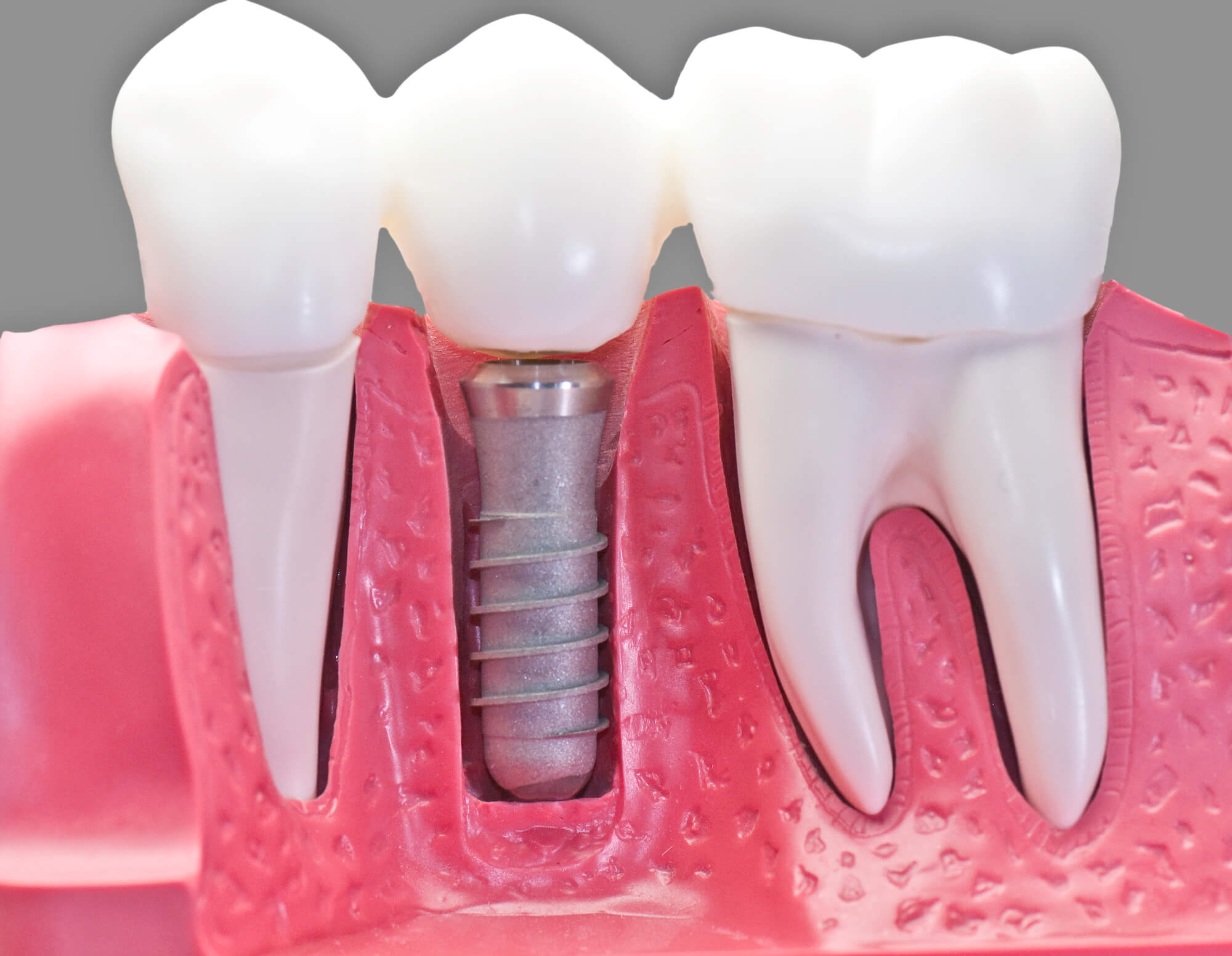 Where to get dental implants boynton beach restorative care?