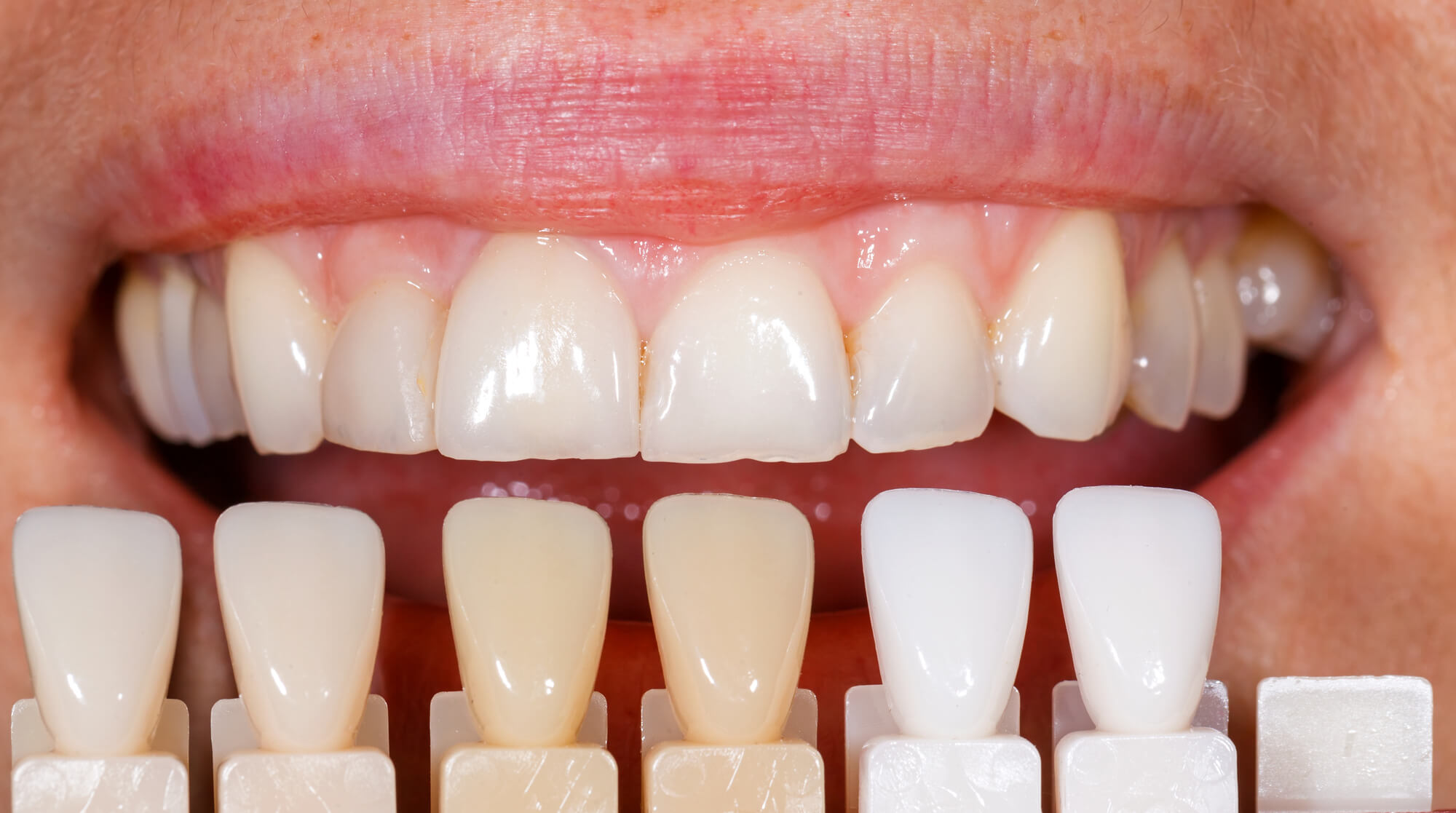 What are veneers boynton beach?