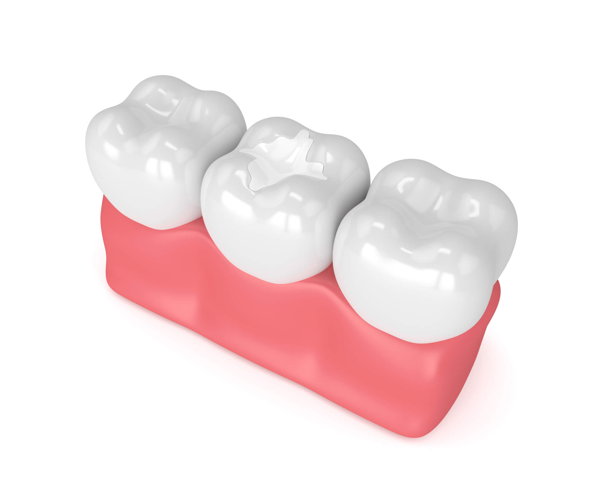 Where to get treatment dental restorations boynton beach?