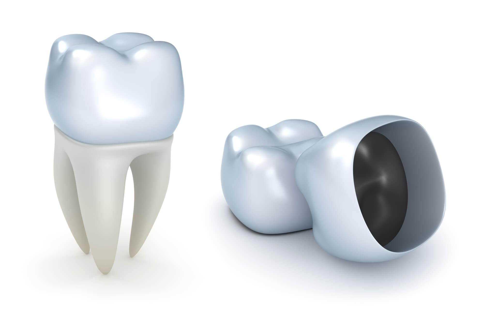 Where can I find Dental Restoration Boynton Beach?
