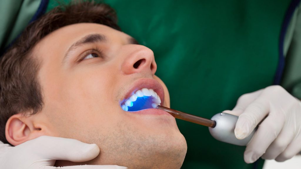 male patient undergoing dental bonding